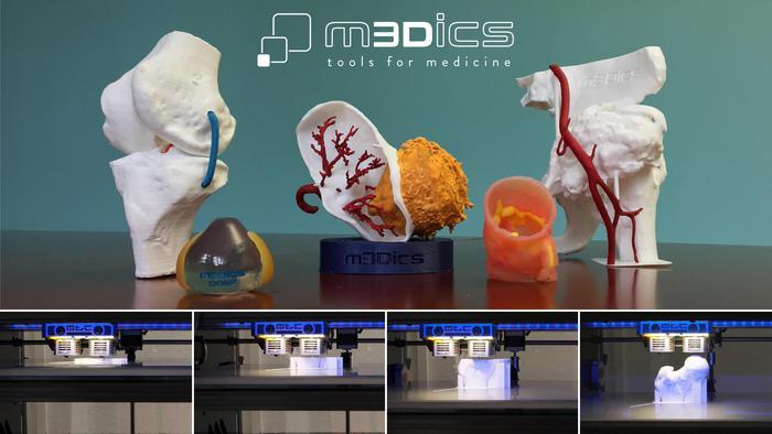 Startup M3dics, stampante 3D aiuta chirurgo in interventi